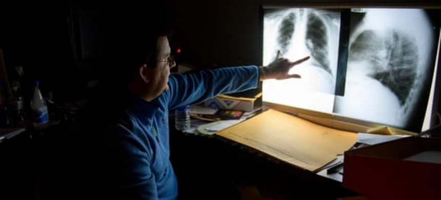 Dr. Brandon Crum reads the chest x-rays of a miner in his office outside Pikeville, Kentucky. (photo: Jeff Swensen/Guardian UK)