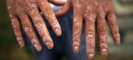 The hands of a victim of Agent Orange, 12/27/11. (photo: Chip Somodevilla/Getty Images)