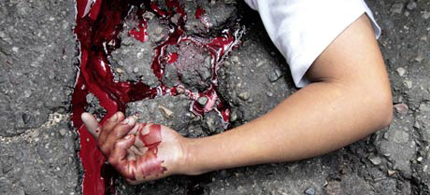 The arm of a boy who was shot dead, a victim of drug cartel violence, on the pavement in Acapulco, Mexico. (photo: Pedro Pardo/AFP/Getty Images)